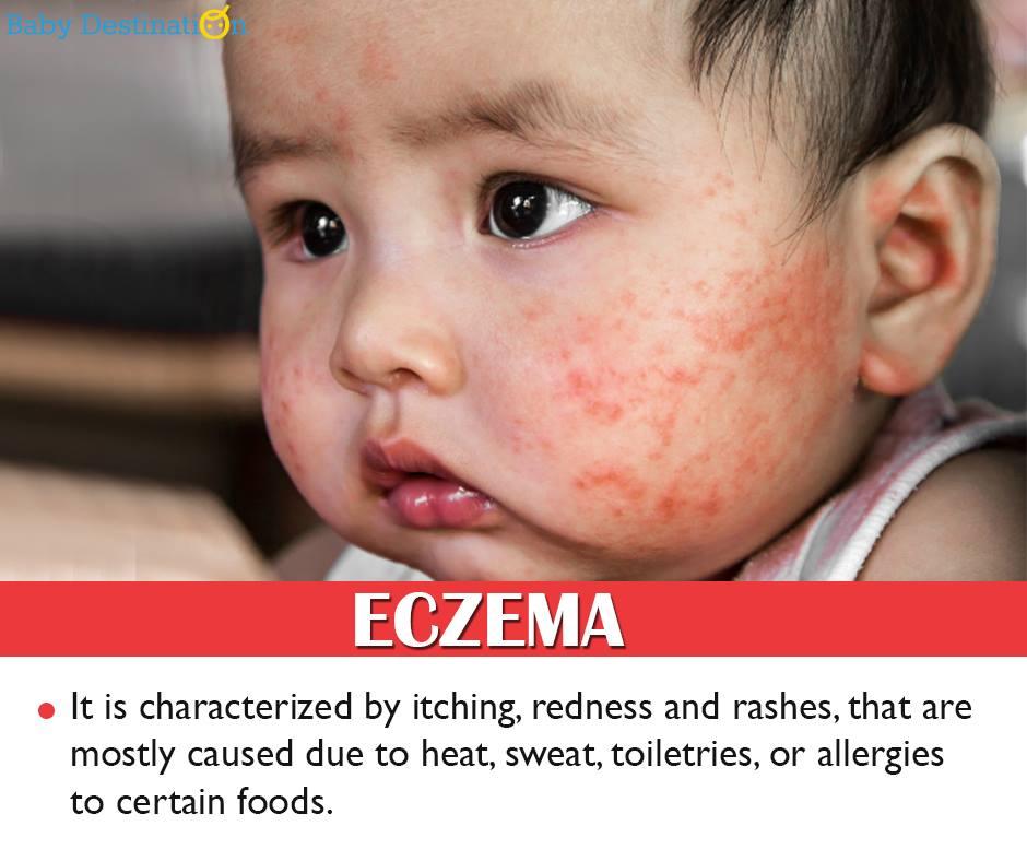 Common Allergies In Babies
