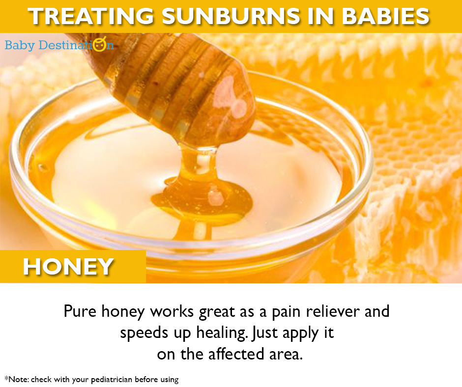 Home Remedies To Cure Sunburn In Babies