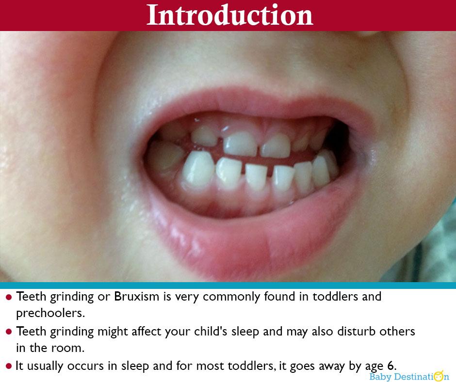 Causes & Home Remedies Of Teeth Grinding