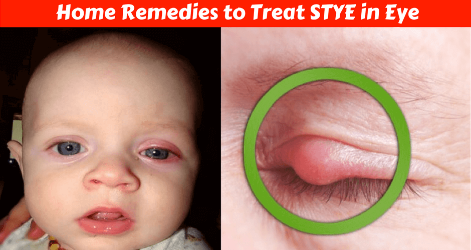5 Home Remedies For Treating Stye In Your Baby's Eye