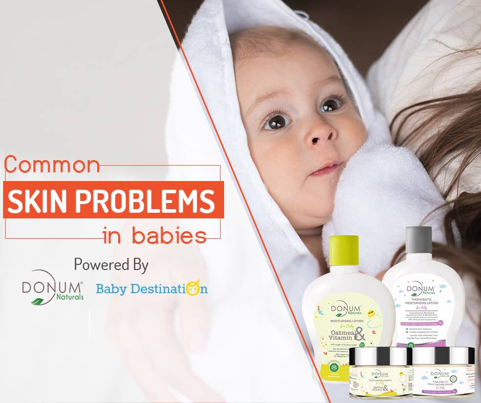 Common Skin Problems in Babies