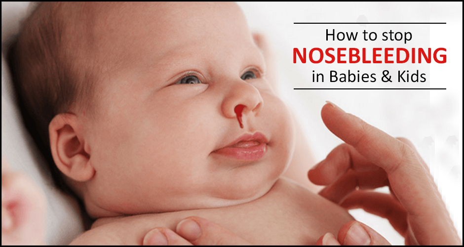 5 Home Remedies to treat Nose Bleeding in Babies & Kids