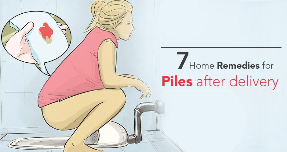 7 Excellent Home Remedies for Piles (Hemorrhoids) After Delivery