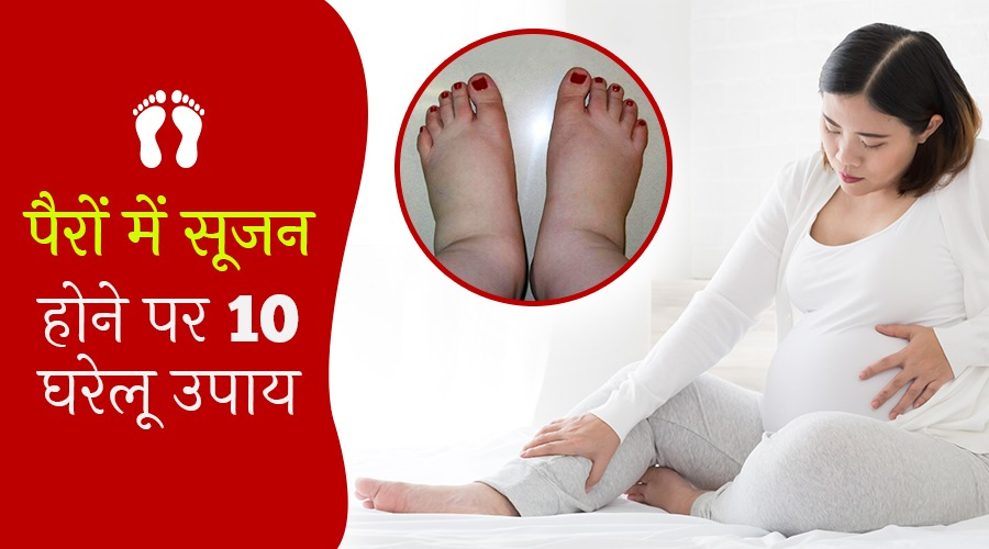 गर्भावस्था के दौरान पैरों में सूजन व फूल जाने के 10 घरेलू उपाय
