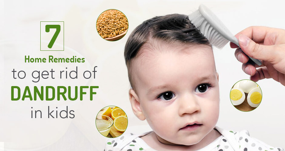 7 Home Remedies To Get Rid Of Dandruff In Kids