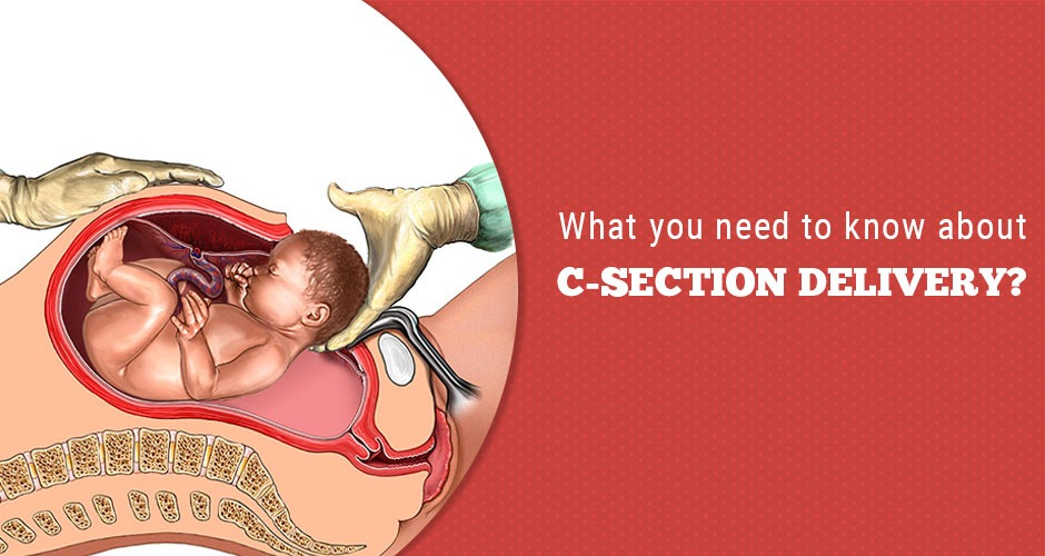 7 Important Things You Should Know About A C-Section