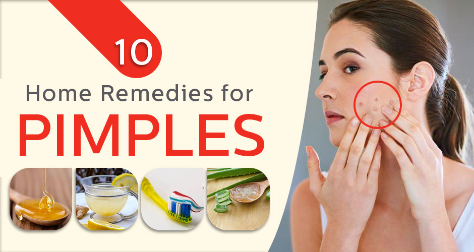 10 Surprising Home Remedies for Acne