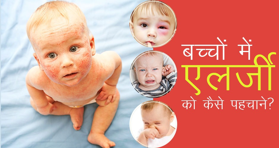 बच्चों में होने वाले 5 एलर्जी के लक्षण