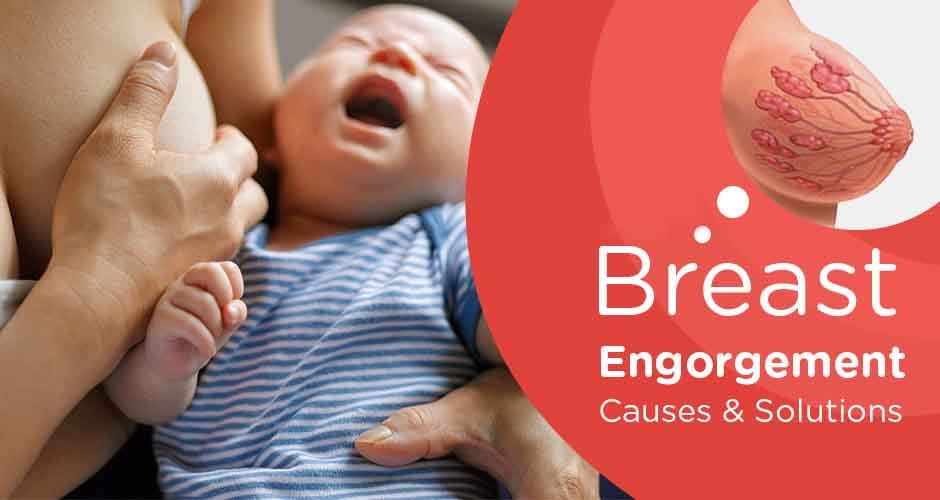 Breast Engorgement - Causes and Solutions