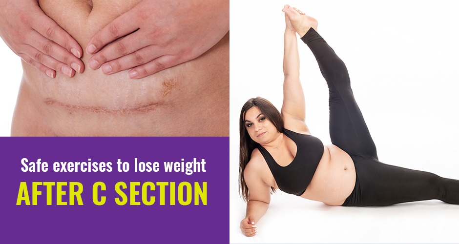 Safe And Simple Exercises To Lose Weight After A C-section