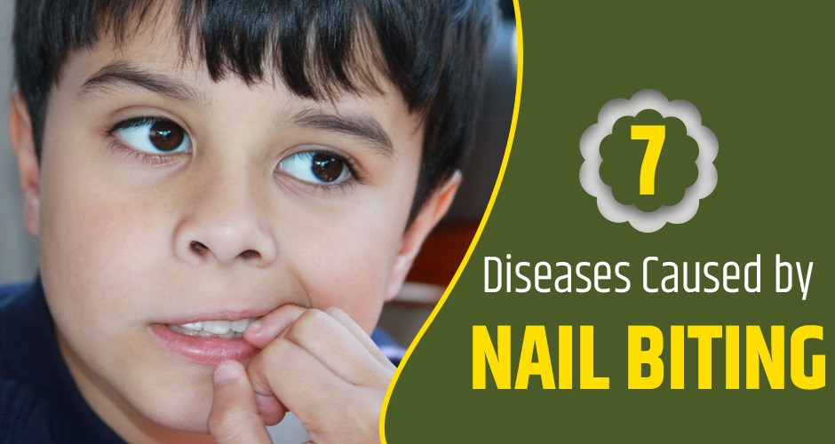 7 Diseases That Are Caused Due To Nail Biting