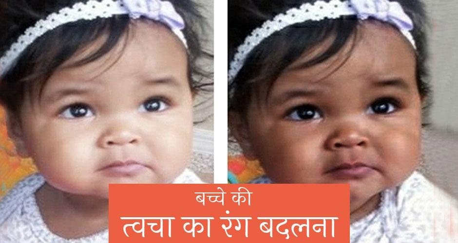 जन्म के बाद आखिर कैसे बदलता है बच्चे का रंग