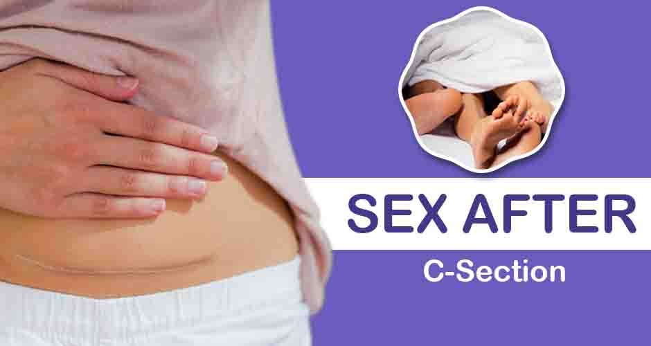 Sex After C-Section Delivery: 7 Things You Must Know