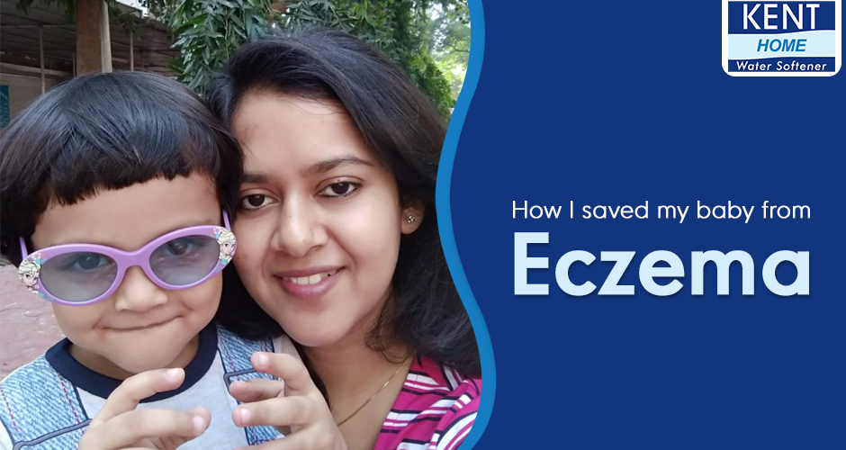 How I Saved My Baby From Eczema - Mom Story