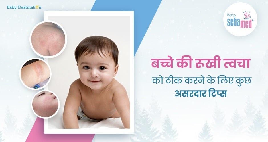 बच्चे की रूखी त्वचा को ठीक करने के लिए कुछ असरदार टिप्स